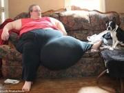 Sức khỏe đời sống - Cắt bỏ thành công khối u nặng 51kg cho một phụ nữ Mỹ
