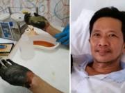 An toàn thực phẩm - Kinh hãi, người đàn ông bị hoại tử tay chân vì ngộ độc thực phẩm