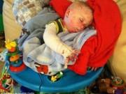 Sức khỏe đời sống - Xót thương bé trai mắc bệnh lạ da bong tróc không ngừng