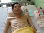 Sức khỏe đời sống - Đau bụng, chán ăn người đàn ông bị hoại tử 1,2m ruột