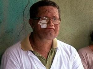 Sức khỏe đời sống - Brazil: Cả thị trấn mặt biến dạng vì mắc bệnh lạ