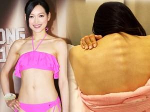 Thí sinh Hoa hậu Hong Kong nhịn ăn, gầy như bộ xương