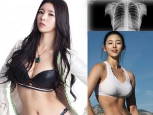 Làm đẹp - Hoa khôi thể hình Hàn chụp X-quang phủ nhận bơm ngực
