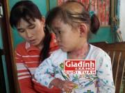 Khoa nhi - Xót xa bé gái mắc bệnh khiến toàn thân tróc vảy, lột da
