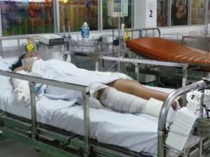 Tin tức Việt Nam - Bé gái bán vé số bị mẹ đốt có thể tàn tật suốt đời