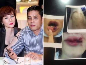 Tố chồng cũ bạo hành, Dương Yến Ngọc nhờ pháp luật bảo vệ