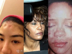 Ca nhạc - MTV - Những sao nữ nổi tiếng từng bị bạo hành dã man