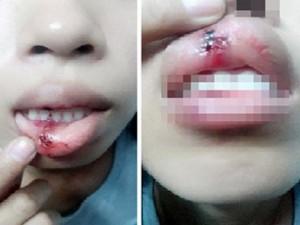 """Tin tức Việt Nam - Xác minh clip """"dập môi vì đòi CSGT giải thích"""""""