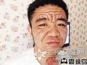 Bạn trẻ - Cuộc sống - Mắc bệnh lạ, anh chàng 30 tuổi hóa ông lão 70 tuổi