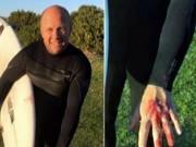 Thể thao - VĐV trở về từ cõi chết sau khi vật lộn với cá mập