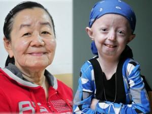 Chuyện lạ - 6 thiếu nữ hóa bà lão 90 vì mắc bệnh lạ