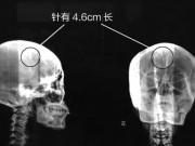Sức khỏe đời sống - Sốc khi phát hiện chiếc kim dài gần 5cm kẹt trong não hàng chục năm