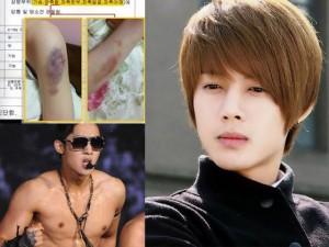 """Kim Hyun Joong: Từ """"triệu người mê"""" đến vũ phu, bạc tình"""
