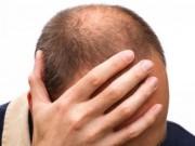Sức khoẻ sinh sản - Nam giới hói đầu dễ mắc bệnh vô sinh