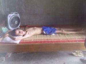 """Bạn trẻ - Cuộc sống - Xót xa ước mơ của cậu bé """"xác ướp"""" nặng 15kg ở Thái Nguyên"""