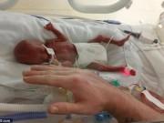 Sức khỏe đời sống - Bé gái sinh non chỉ nặng 5 lạng sống sót kì diệu
