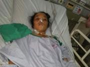 Sức khỏe đời sống - Cứu thai phụ bị áp xe gan vì 40 con giun chui ống mật