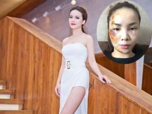Yến Trang tái xuất xinh đẹp sau tai nạn nghiêm trọng