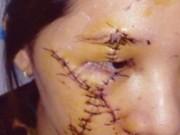 """An ninh Xã hội - Nữ tiếp viên bị rạch mặt vì """"nẫng"""" khách của đàn chị"""