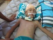 An ninh Xã hội - Vụ bác đánh 2 cháu thương vong: Bé trai vẫn nguy kịch
