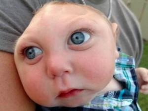 Phi thường - kỳ quặc - Sức sống kỳ diệu của bé trai chỉ có nửa hộp sọ