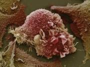 Báo động: Trẻ 2 tuổi đã bị ung thư tinh hoàn, 9 tuổi ung thư dạ dày