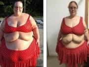 Làm đẹp - 2 cô gái khốn khổ vì da thừa đáng sợ hậu giảm cân