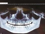 Phi thường - kỳ quặc - TQ: Ăn cơm thấy đau, đi khám thấy răng mọc gần mắt