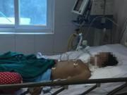 Sức khỏe đời sống - Mỗi ngày, Việt Nam có hơn 3.300 người đột qụy