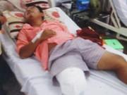 Sức khỏe đời sống - Từ ngã xe, một bệnh nhân đã bị cắt chân