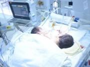 Tin tức trong ngày - Hai bé sơ sinh dính liền ở Hà Giang đã tử vong