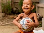 Bạn trẻ - Cuộc sống - Cậu bé 4 tuổi bị xa lánh vì ngoại hình như ông lão