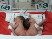 Sức khỏe đời sống - Hai bé song sinh dính mông: Sau phẫu thuật sẽ thế nào?