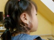 Kinh nghiệm chữa quai bị cho con chỉ 5 ngày không cần kiêng cữ