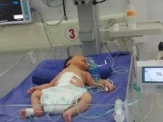 Tin tức trong ngày - 3 giờ cứu bé sơ sinh bị lòi toàn bộ ruột, tạng