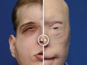 Thế giới - Người đầu tiên được ghép mặt người khác giờ ra sao?