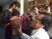 """Tin tức trong ngày - Người mắc bệnh """"mai rùa"""" cực kỳ hiếm xuất hiện tại Việt Nam"""