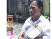An ninh Xã hội - Dân tố bị công an phường đánh lệch xương vai