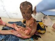 Thế giới - Chấn động hình ảnh em bé napalm Syria bỏng nặng