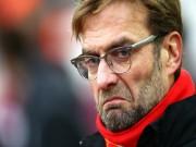 """Bóng đá - Liverpool: Klopp và trọng trách của 1 """"tay trống"""""""