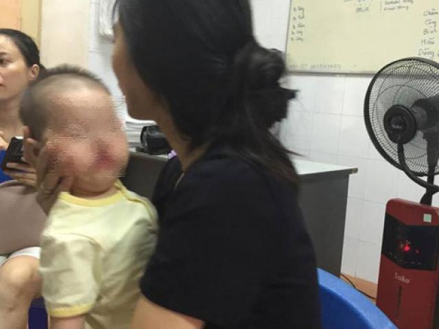 Lạ lùng bé 1 tuổi khóc như tiếng mèo kêu