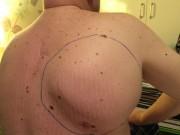 """Phi thường - kỳ quặc - Gỡ bỏ khối u """"ngoài hành tinh"""" khỏi lưng người đàn ông"""