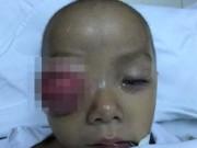 Viêm xoang không chữa, mắt bé 16 tháng sưng to suýt mù