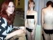 """5 thiếu nữ trẻ xinh đẹp hóa """"bộ xương khô"""" vì ám ảnh nhan sắc"""