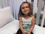 Sức khỏe đời sống - Bệnh hiếm gặp khiến bé gái ngã 100 lần mỗi ngày
