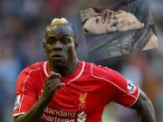 Bóng đá - Balotelli sa sút phong độ vì… lợn cưng