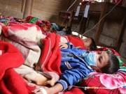 49 trẻ nghi mắc sởi: Yêu cầu Nghệ An xử lý ổ dịch