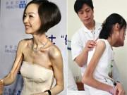 """Làm đẹp - Hậu họa từ trào lưu """"xương khô"""" ở Trung Quốc"""