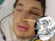 Chuyện lạ - Sống sót sau khi hộp sọ vỡ tan thành 30 mảnh