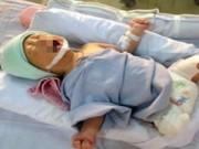 Tin tức trong ngày - Bé sơ sinh bị văng khỏi bụng mẹ đã uống được sữa